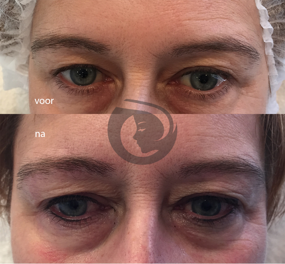PMU eyeliner