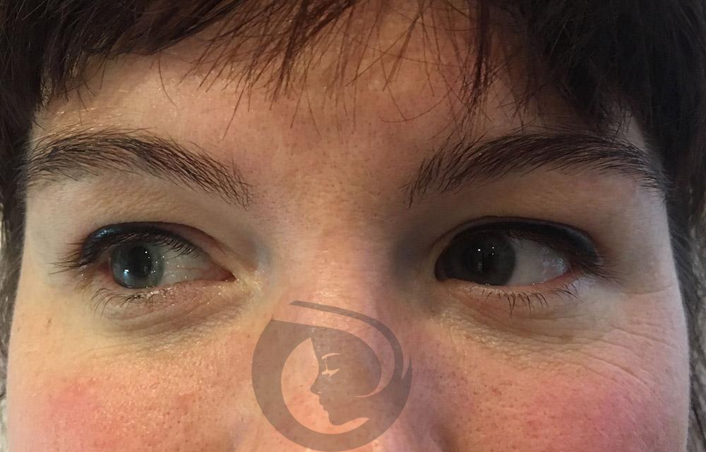 PMU Eyeliner Boven